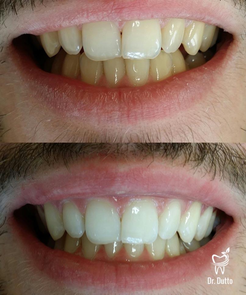 dent avant et apres detartrage