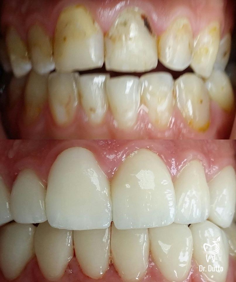 ... facette dentaire avant apres 4 677a449761ca